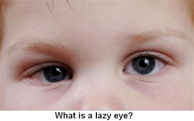 Lazy Eye Causes, Diagnosis And Treatment | What is a lazy eye?