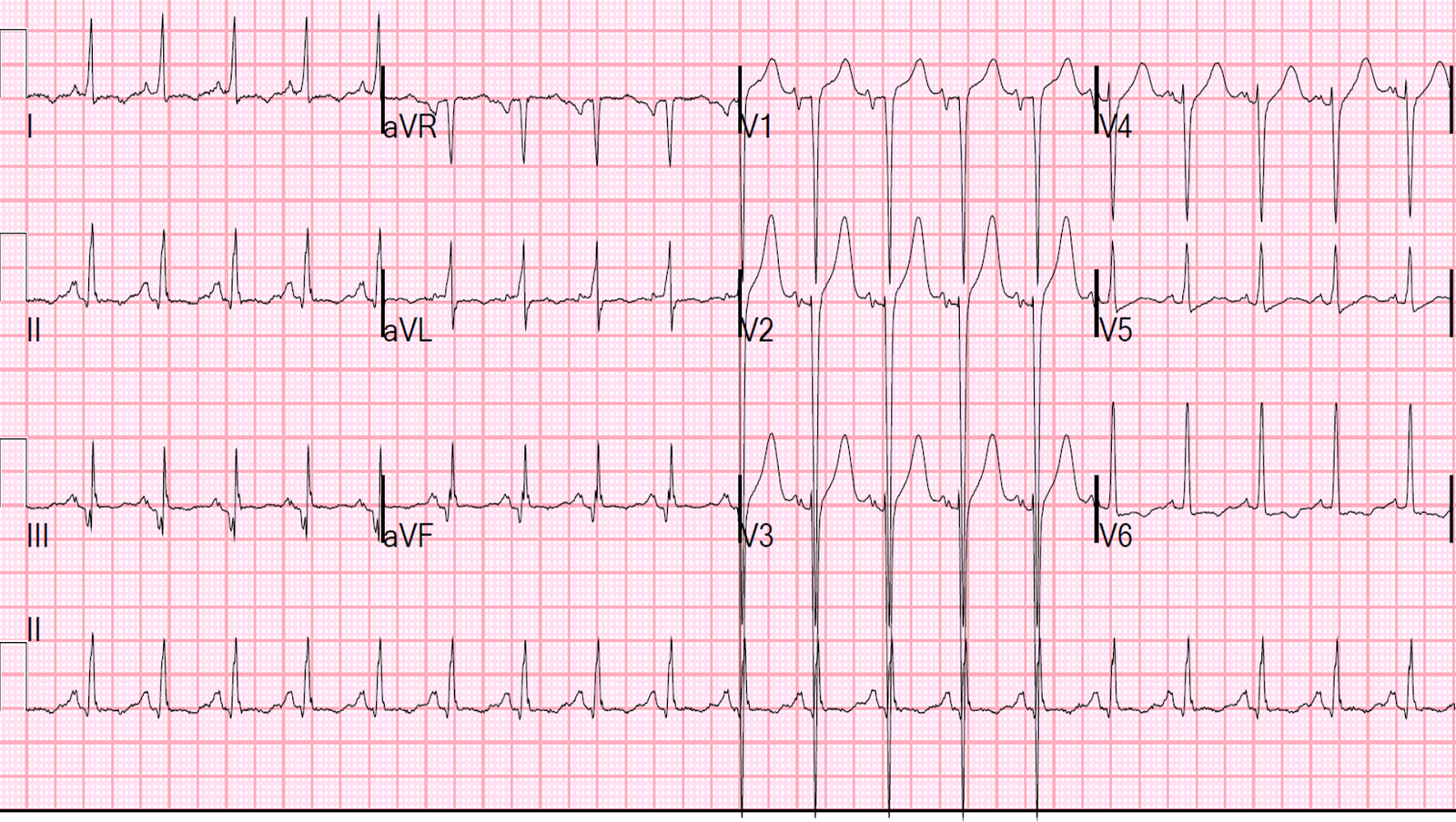 Dr. Smith's ECG Blog: ST Elevation and Positive Troponin ...