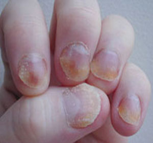 Fingernails and Thyroid Disease http://emeraldquill.blogspot.com/2012/03/nail-health.html