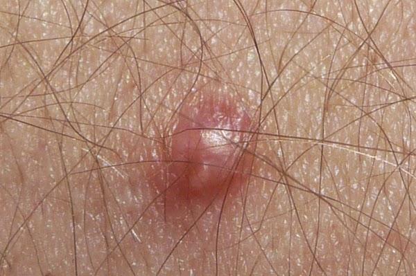 8 Penyakit Jangkitan Seksual Std Cikguhailmi