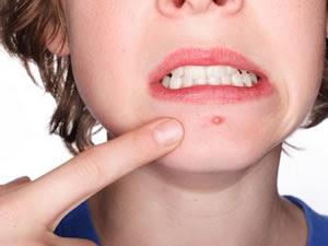Como evitar espinhas