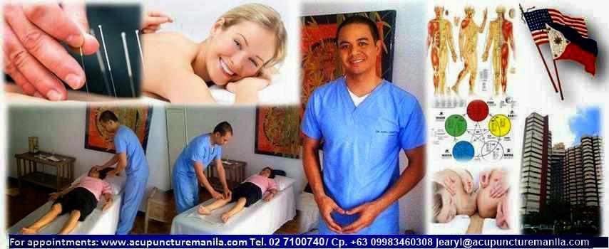 Acupuncture Manila