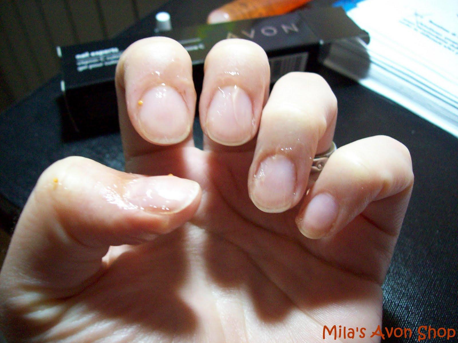 unghie dopo gel