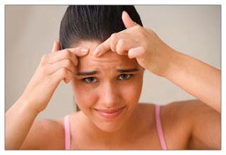 Tips Cara Mencegah Jerawat Secara Alami