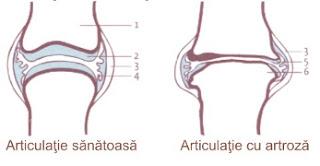 Cauzele, simptomele si tratamentul artrozei