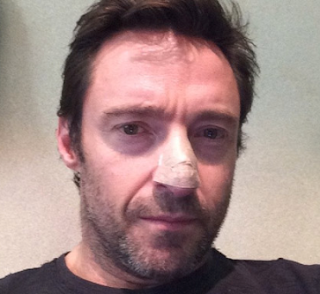 Hugh-Jackman-cáncer-piel