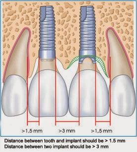 jamnagar implant, jamnagar dental, jamnagar dentist, dental jamnagar, jamnagar dental implant