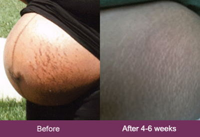 mederma before and after stretch marks pregnancy