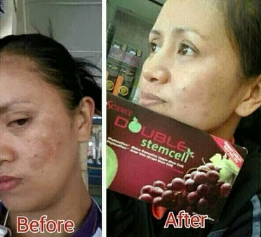 Kelebihan produk Double Stem Cell