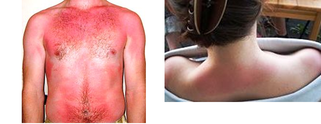 burn degrees Second-degree burns are characterized by damage from said burn all the way  through the uppermost layer of skin — the epidermis this layer.
