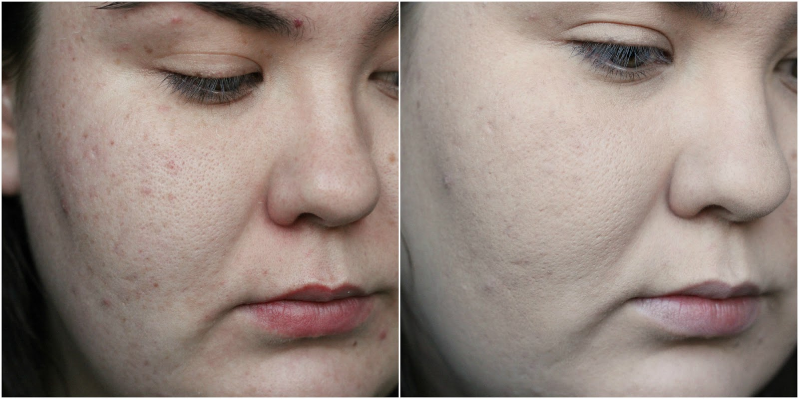 L'Oreal Infallible 24 HourMatte Foundation before and after