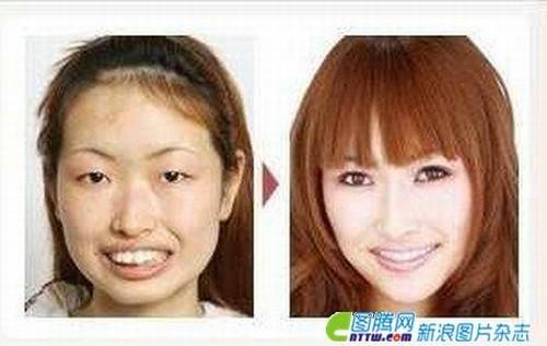Chinese Woman Plastic Surgery