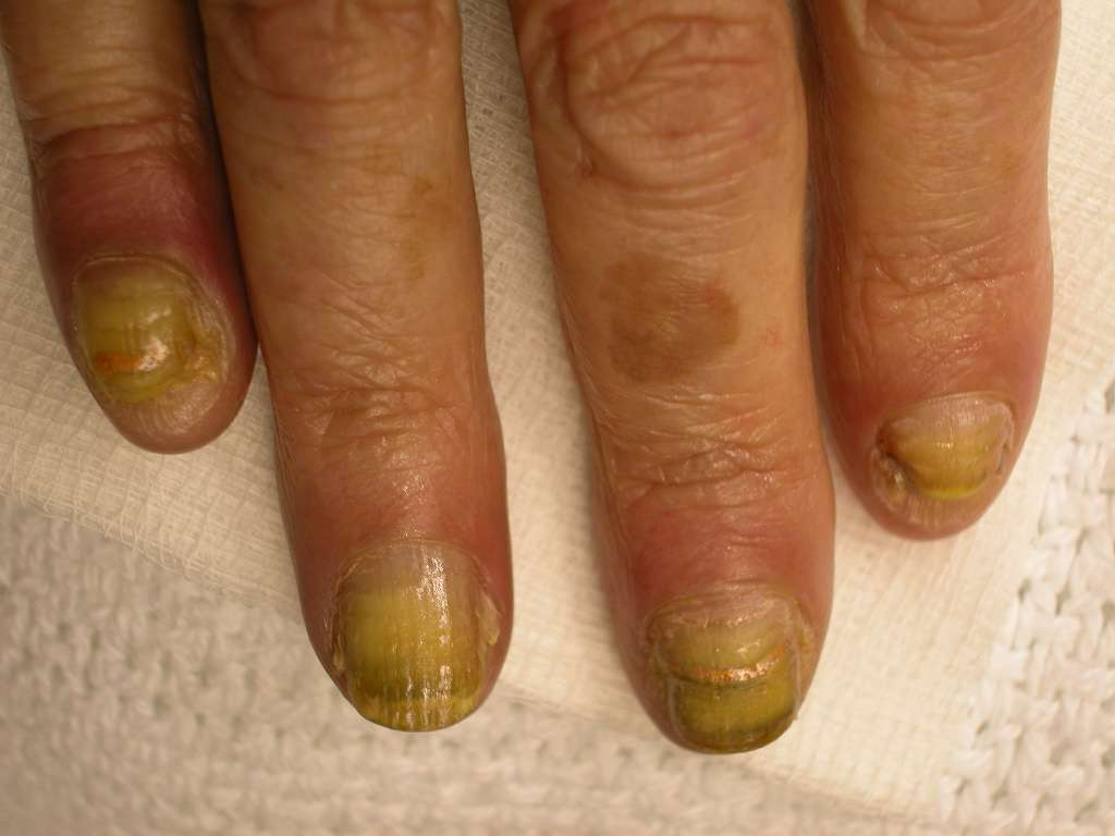 Health nails article: 7 fingernail problems not to ignore