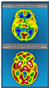 http://www.cerescan.com/pages/AnxietyDisorder