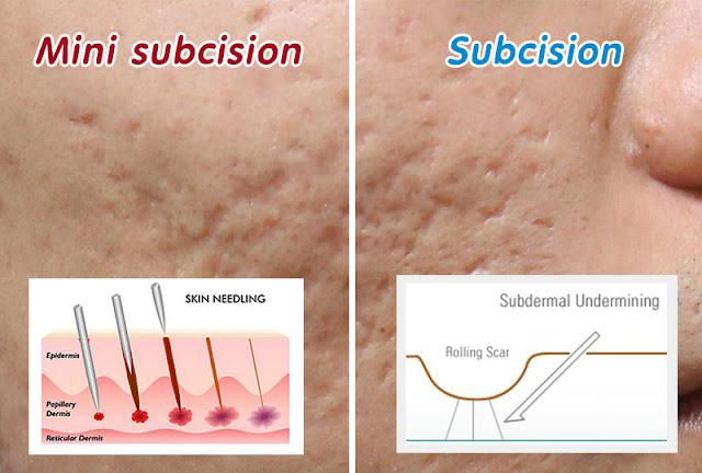 รักษาหลุมสิวด้วย subcision vs mini subcision