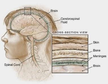pengobatan herbal radang selaput otak