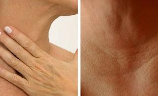 4 remèdes naturels pour prévenir les rides du cou et des mains