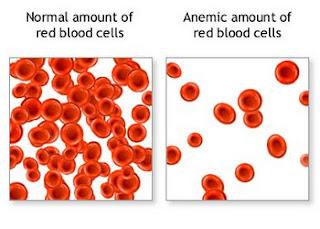 Lượng hồng cầu máu bình thường (trái) và thiếu máu ( phải).