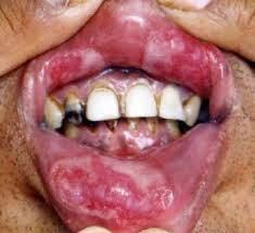 sipilis di mulut