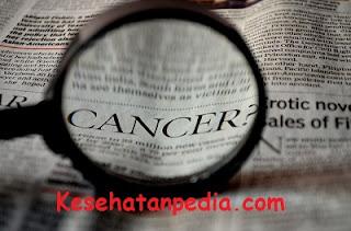 Cara alami mencegah penyakit kanker payudara