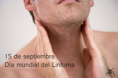 El 15 de septiembre es el día mundial del linfoma