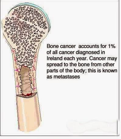 Penyebab Terjadinya Penyakit Kanker Tulang