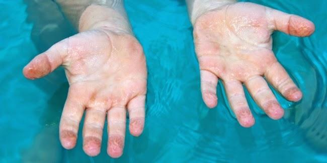 Jari-Jari Anda Keriput Saat Berenang Ini Alasannya Mengapa
