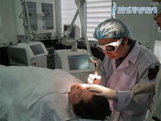 Laser Q-switched Nd YAG trị tàn nhang tận gốc