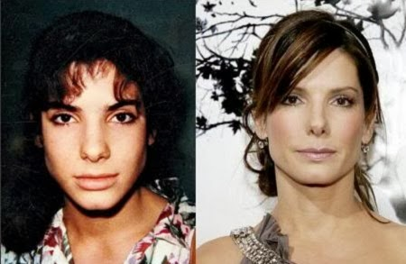 El Antes y Despues de Actrices de Hollywood