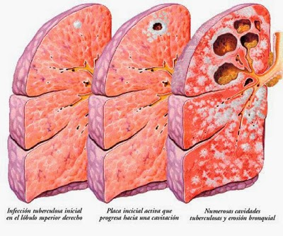 Peritoneal tuberculosis. Numerous granulomas on the