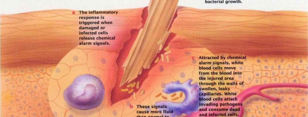 Inflammation - Cell Injury