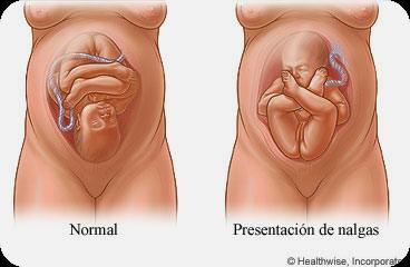 Resultado de imagen de embarazadas con bebes de nalgas
