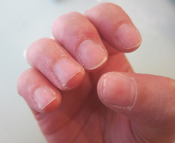 Short and Damaged Nails