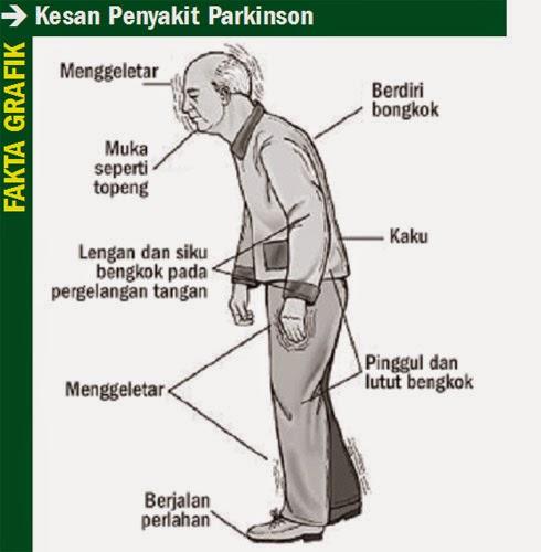 Cara Cepat Mengobati Penyakit Parkinson