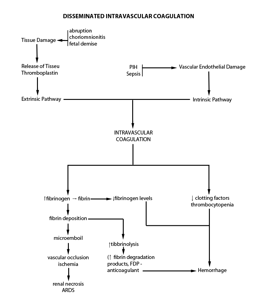 disseminated intravascular coagulation Disseminated intravascular coagulation (dic) is always secondary to an underlying disorderthe pathological situations that cause dic are shown in table idic may be fulminant (progressing rapidly.