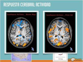 Respuesta cerebral a estímulos, Fmri, Antonio Casals, Esmeralda Diaz-Aroca