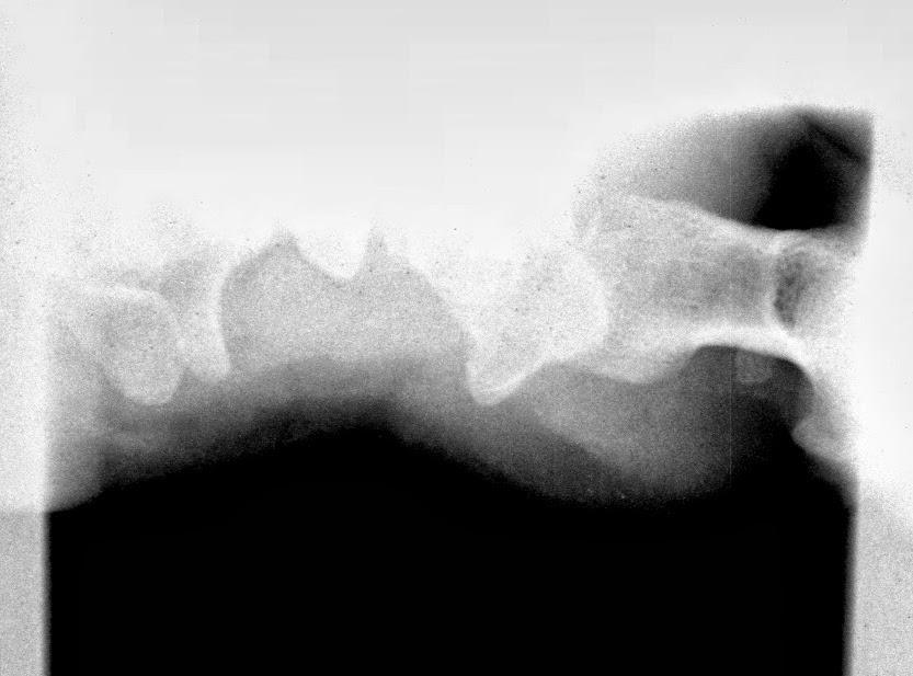 Tecnicos Radiologos: Radiología del Túnel Carpiano