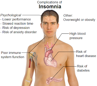 What is Insomnia? What is the principal cause of Insomnia?