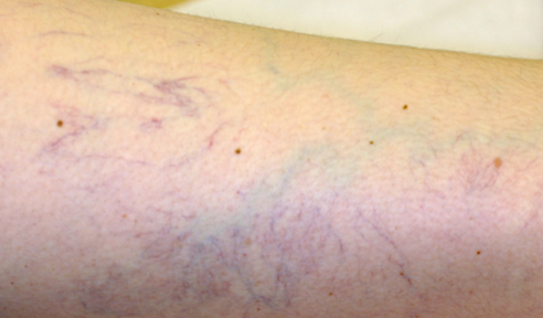 welcome to ladun liadi s blog how to get rid of thread green veins