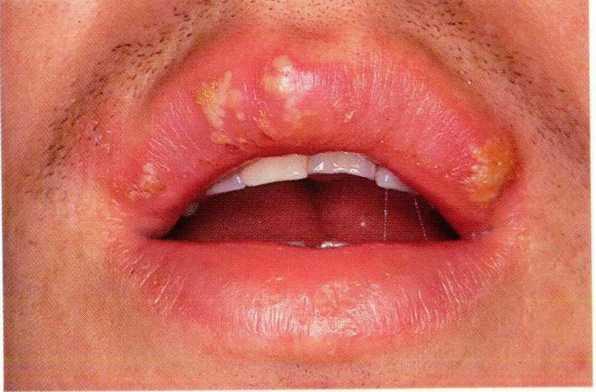 ways to get rid of cold sores yeast infections