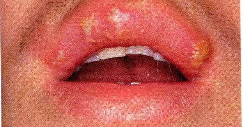 Labial melanotic macule | DermNet New Zealand