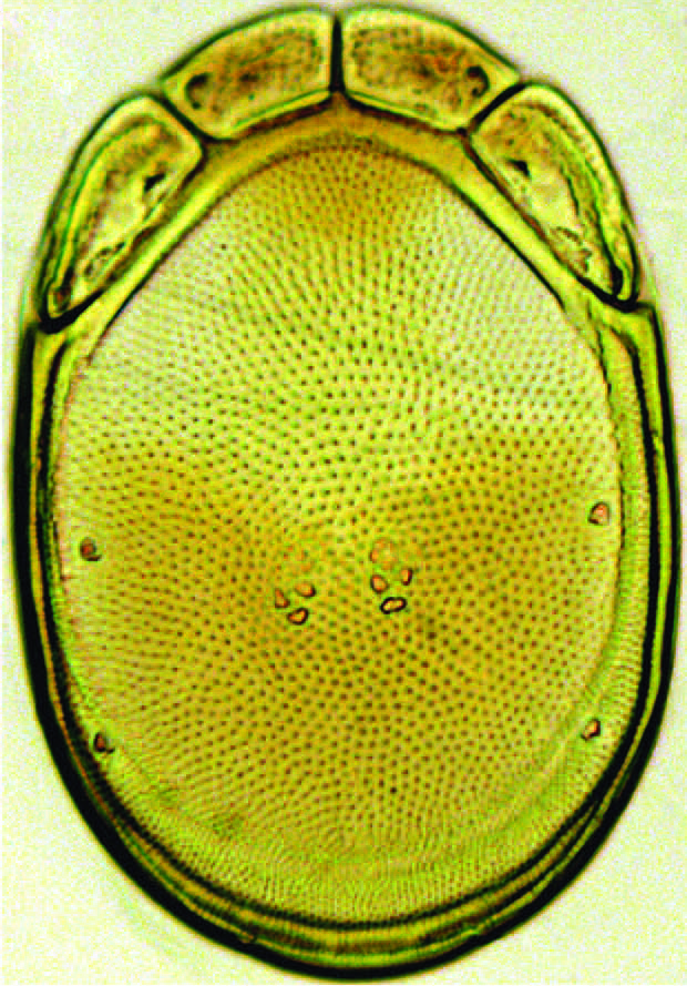 This image shows one of the newly discovered water mite species Torrenticola kimichungi. Credit: Vladimir Pešić