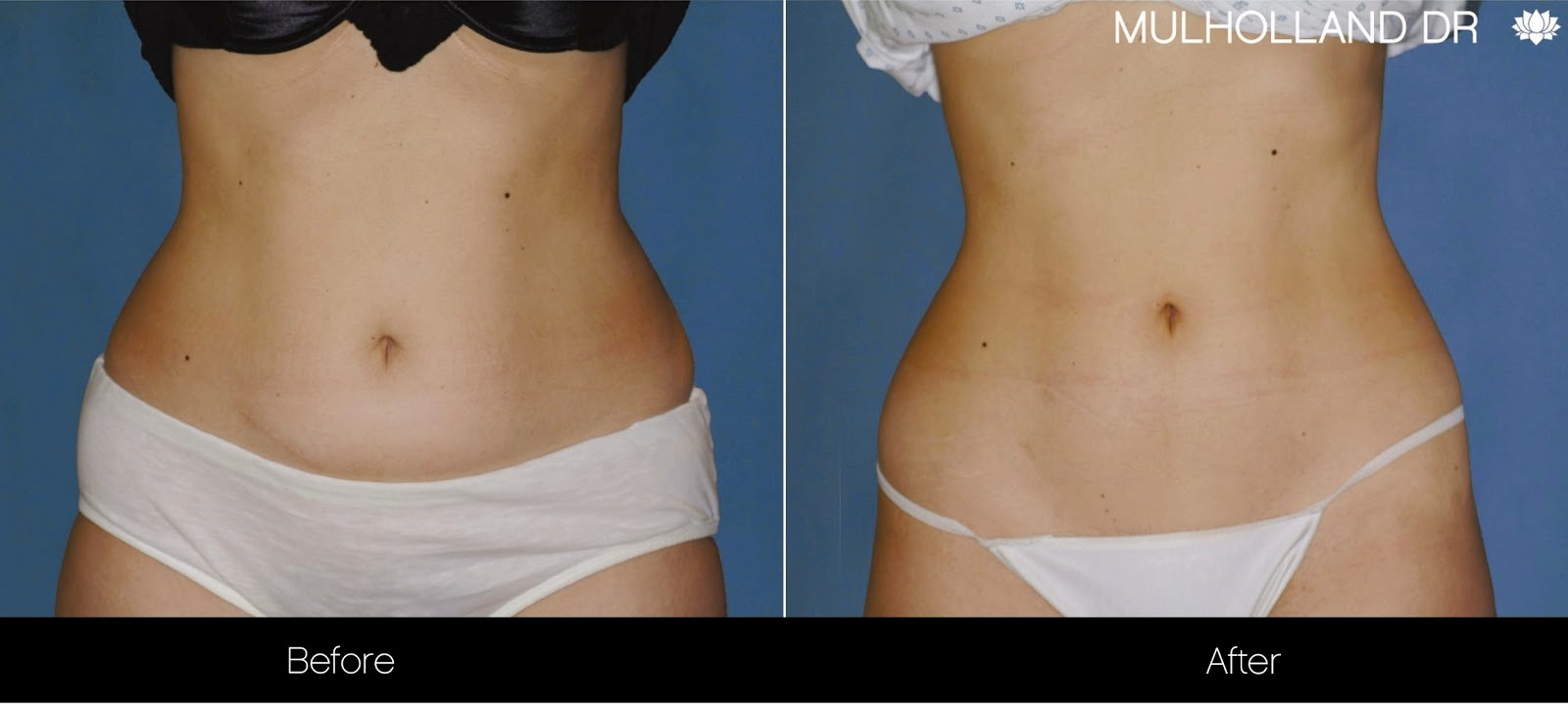 Before and after photo of non-surgical liposuction patient