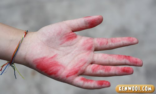 red mark hand