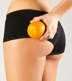 Cellulite and Your Skin Health