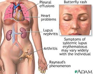 gejala penyakit lupus