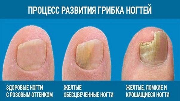 Грибок ногтя начальная стадия на ноге