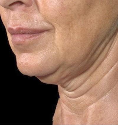 Соответственно, можно убрать некоторые морщины на лице, применив правильное положение во время сна.