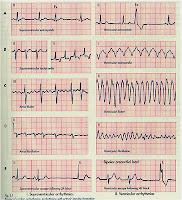Jenis Macam Aritmia Disritmia Jantung