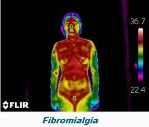 Fibromialgia: abordagem holística, artigo de Frederico Lobo - Termografia